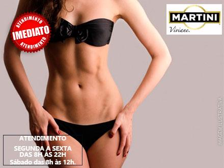 10 Sessões de Massagem Turbo + Fangoterapia + Esfoliação Corporal + Manta + Esteira Vibratória, por apenas 59,90.
